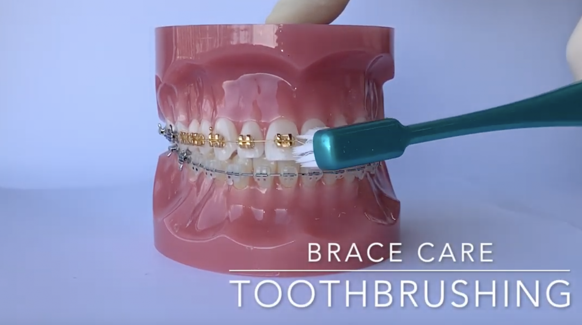 TOOTHBRUSHING FOR BRACES - the required method for brushing your brace