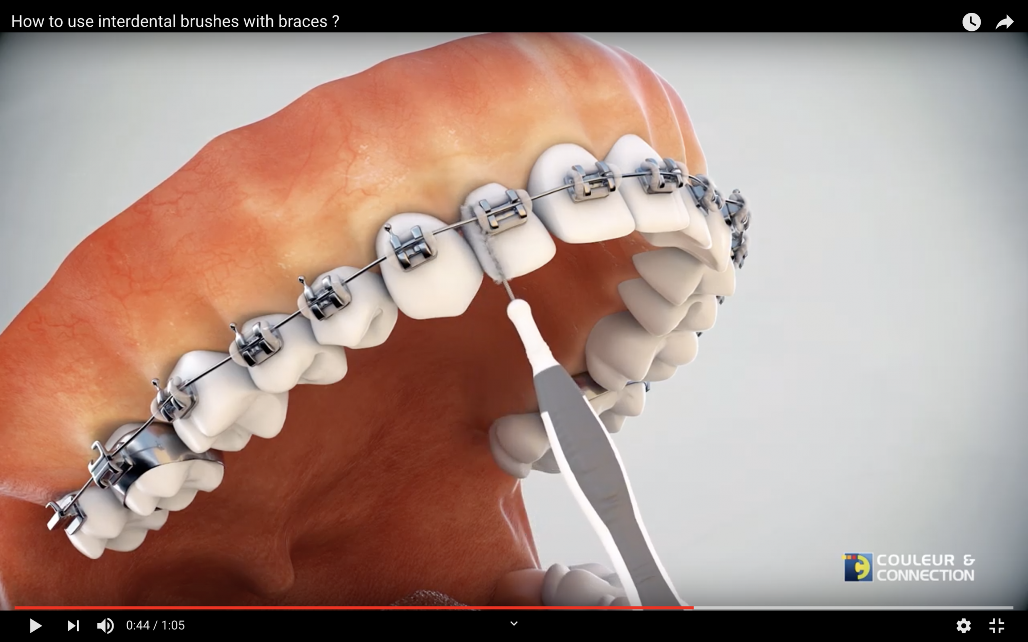Keep using interdental brushes for your braces